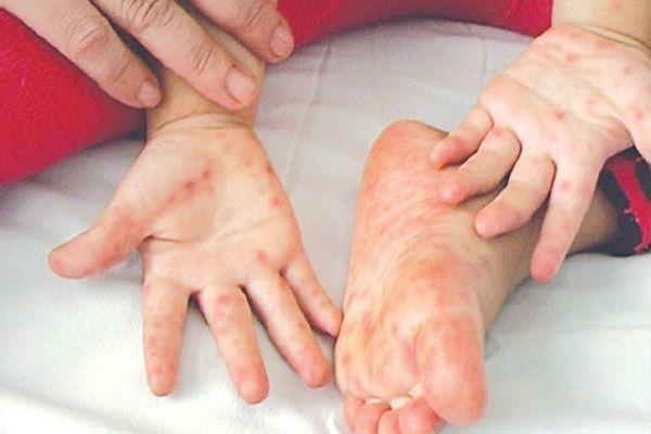 biểu biện của bệnh chân tay miệng