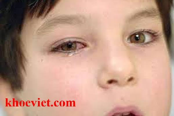 dấu hiệu trẻ bị viêm kêt mạc