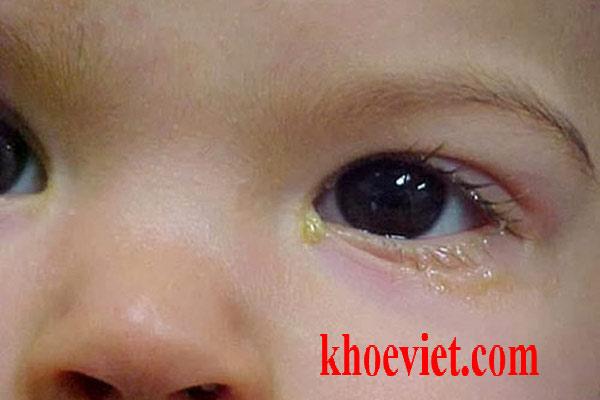 trẻ bị ghèn ở mắt