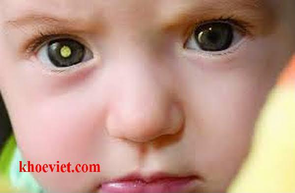 trẻ bị đục thủy tinh thể bẩm sinh