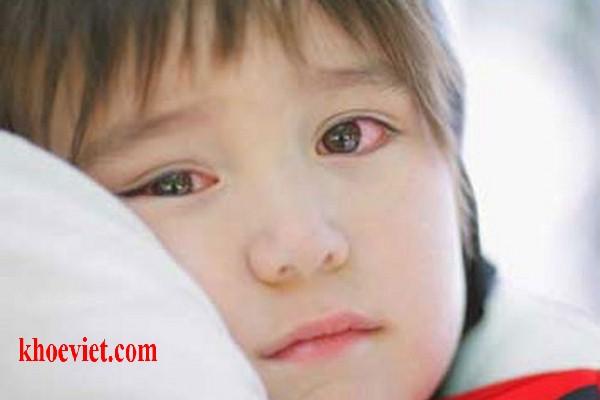 viêm kết mạc dị ứng ở trẻ em
