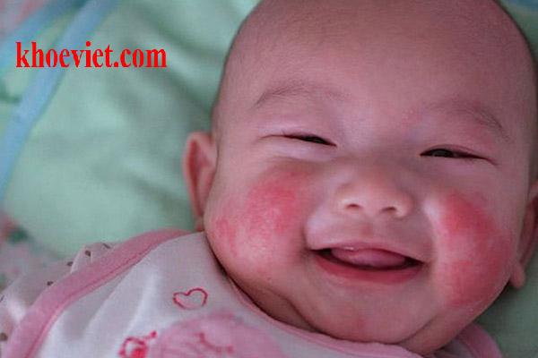 cách trị chàm cho trẻ sơ sinh