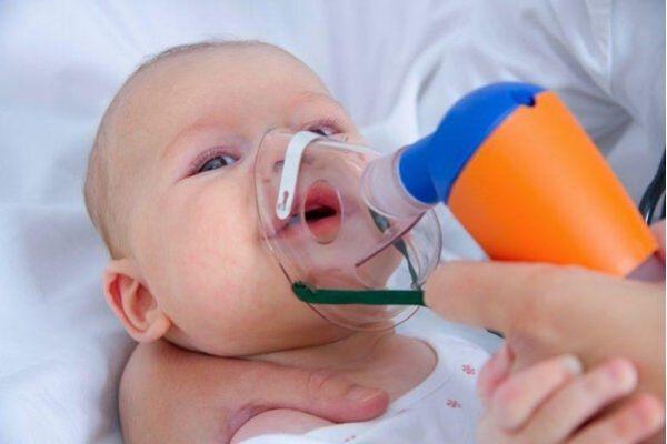 trẻ bị viêm tiểu phế quảnbội nhiễm