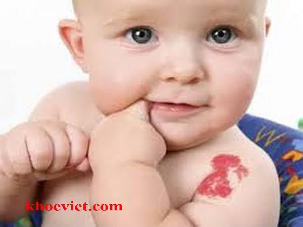 u máu ở trẻ sơ sinh