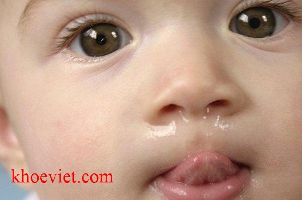 trẻ bị sổ mũi lâu ngày không khỏi